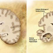 Choroba Alzheimera - porównanie mózgów